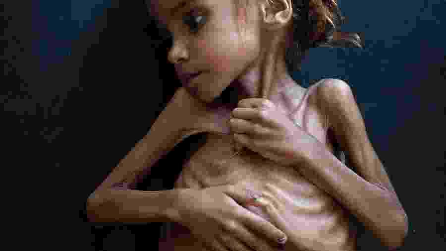 Amal Hussain, 7, que sofria de desnutrição aguda severa, era cuidada em uma clínica móvel administrada pela Unicef em Aslam, Iêmen - TYLER HICKS/NYT