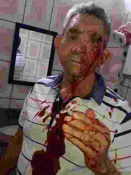 Professor Paulo Procópio momentos após ser agredido por um aluno na sala de aula em Lins (SP) - Arquivo pessoal