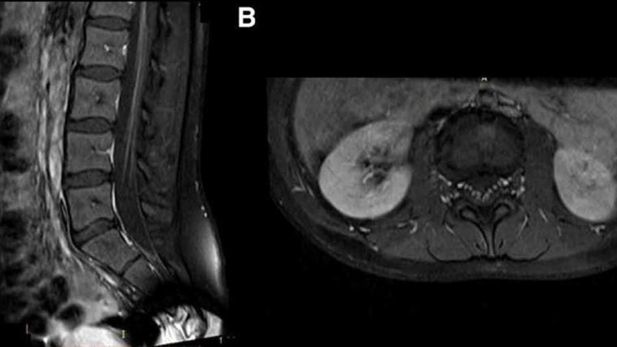 Imagens do estudo que permitiram associar a infecção pelo novo coronavírus à Síndrome de Guillain-Barré - Divulgação