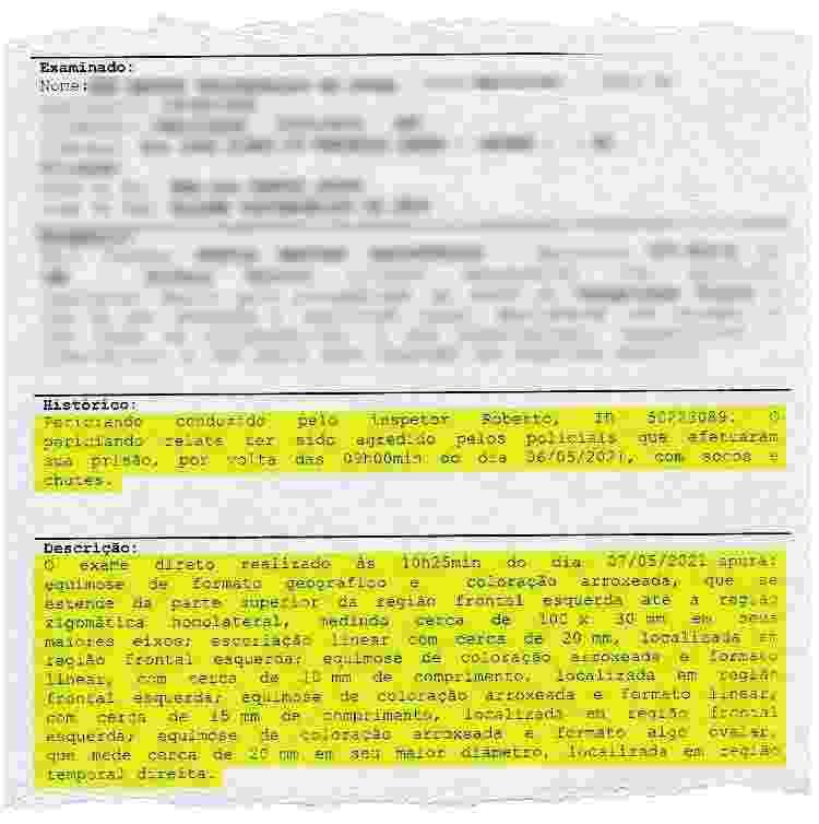 Laudo de um dos presos no Jacarezinho em 06 de maio, na operação Exceptis, constatou sete contusões compatíveis com agressões - Reprodução / Instituto Médico-Legal - Reprodução / Instituto Médico-Legal