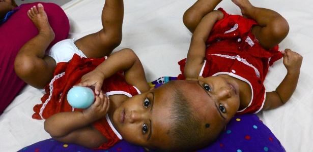 Rabia e Rukia nasceram unidas pelo crânio em Bangladesh; médicos buscam ajuda para separá-las