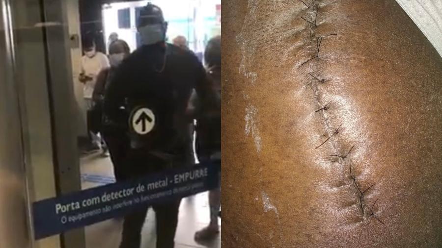 Marcelo Cabral só conseguiu passar pela porta giratória após provar cicatriz de cirurgia para implante de prótese - Reprodução/ Arquivo pessoal