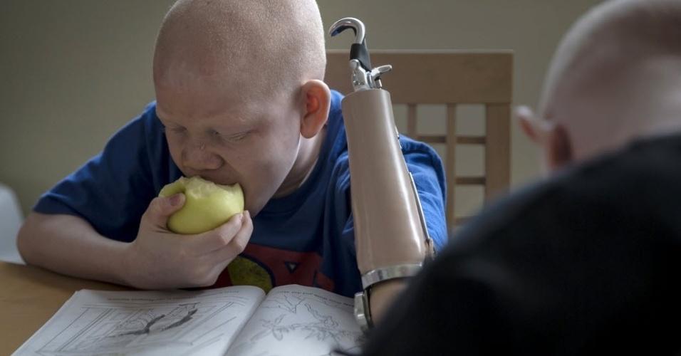 30.set.2015 - Mwigulu Matonage, de 12 anos, come uma fruta enquanto faz sua lição de casa em Nova York, nos Estados Unidos. A criança foi levada da Tanzânia para os EUA na tentativa de evitar novas amputações e perseguições religiosas por ser albino. O albinismo é uma doença congênita mais comum na África subsaariana, que afeta cerca de um em 1.4 mil pessoas na Tanzânia. A imagem é do dia 21 de setembro e foi divulgada nesta quarta-feira (30)