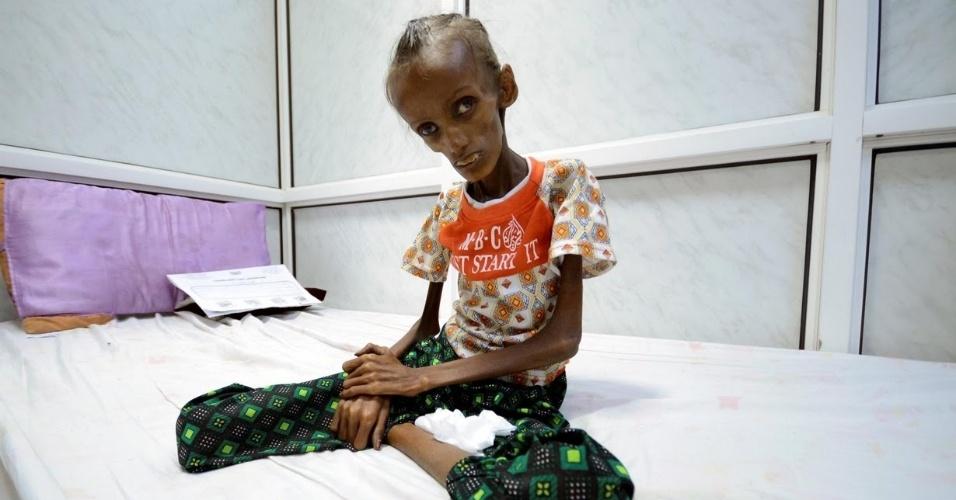 9.nov.2016 - Saida Ahmad Baghili, 18, vive deitada numa cama de hospital na cidade portuária de Hodaida, no mar Vermelho. A jovem é uma das vítimas da desnutrição disseminada pela guerra civil há 19 meses no Iêmen