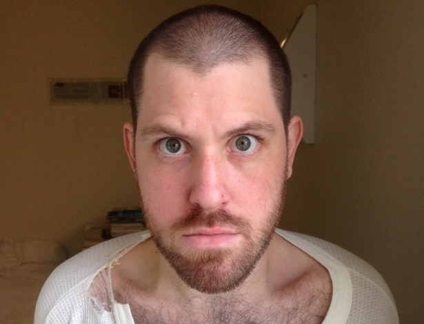 William Charles Morva, que foi diagnosticado com uma doença similar à esquizofrenia