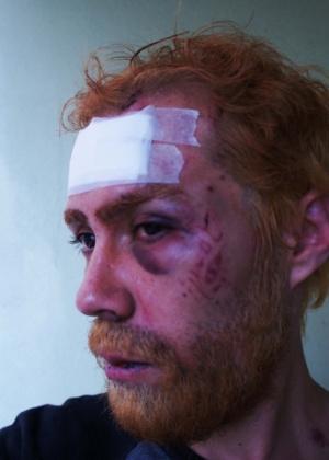 Por causa das agressões, Schweitzer cancelou a estreia de uma peça