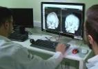 Como médicos gaúchos usaram impressora 3D para reconstruir crânio por R$ 45 (Foto: Divulgação HUSM)