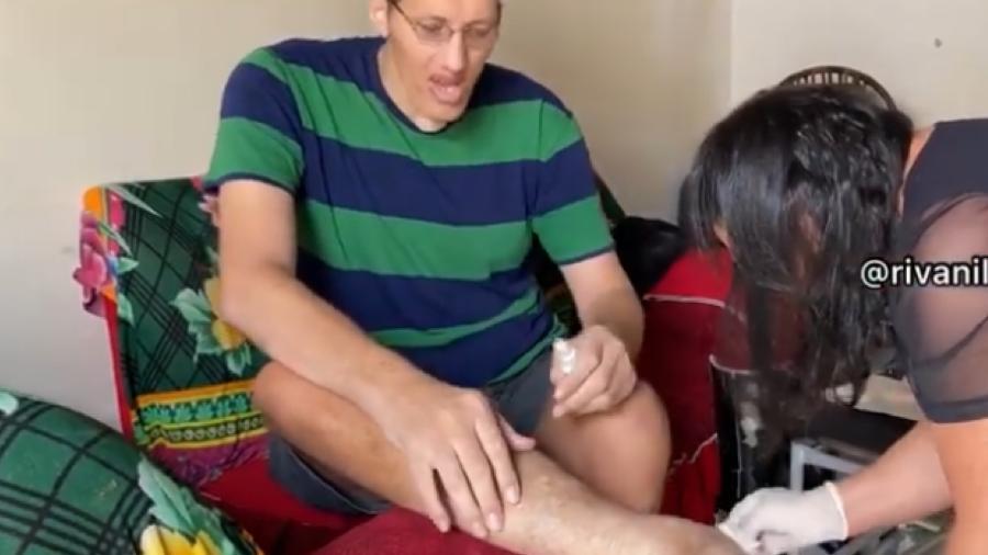 Joelison Fernandes da Silva decidiu amputar perna direita, após resistência inicial - Reprodução/ Instagram @ninaooficiall