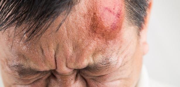 """Um """"galo"""" se forma na cabeça quando há um trauma na região"""