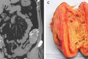 Com dores, mulher descobre esponjas cirúrgicas dentro da barriga há 6 anos (Foto: Divulgação/The New England Journal of Medicine)