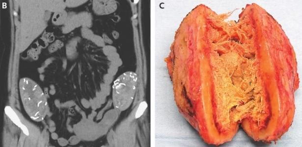 Tomografia mostra duas massas com estruturas fibrosas dentro do abdômen da paciente - Divulgação/The New England Journal of Medicine