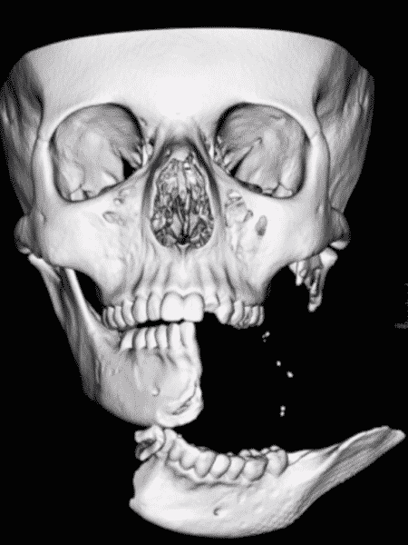 Simulação mostra como ficou crânio de Emily após acidente - Reprodução/BBC