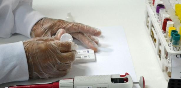 Teste rápido para análise para vírus da zika - Romildo de Jesus/Futura Press/Estadão Conteúdo
