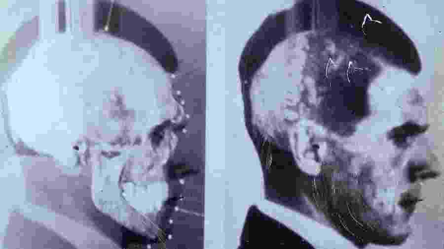 Cientistas alemães apostaram em técnica inovadora de sobrepor imagens para confirmar que crânio exumado em Embu era de Josef Mengele - Cortesia/Maja Helmer