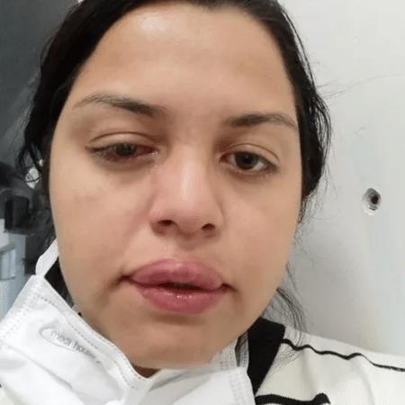 Rosto de Francieli após o ataque; médico aguarda fim do tratamento para avaliar sequelas na visão - Reprodução/Arquivo Pessoal