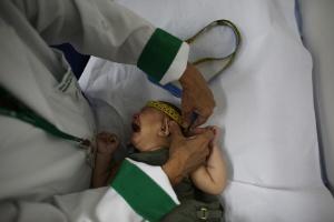 Bebê com microcefalia que participam de pesquisa em São Paulo