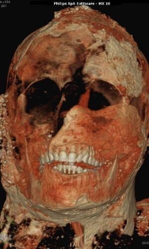 29.set.2015 - Tomografia de rosto de múmia de Pompeia, atingida pela erupção do Vesúvio, em 79 d.C. Dentes eram perfeitos, consequência de alimentação saudável das vítimas