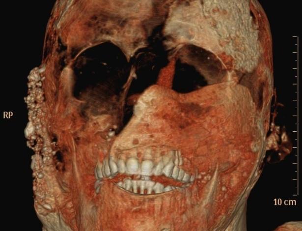 Pesquisa escaneia habitantes de Pompeia mortos em erupção do Vesúvio