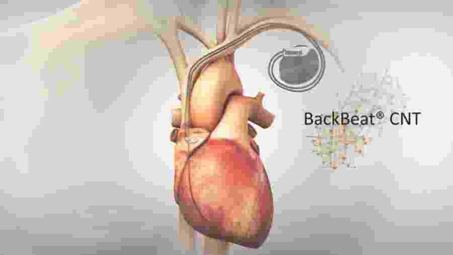 Backbeat CNT, aparelho de marca-passo que promete ajudar pacientes com hipertensão - Reprodução/Orchestra BioMed