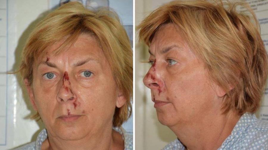 Mulher estava ferida e desidratada e não se lembra quem é ou como chegou ao local - Reprodução/24Sata