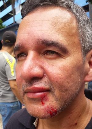 O servidor Joel Benozor, 52, ficou ferido nas pernas, no antebraço, no pescoço e na boca