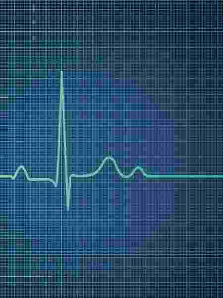 Eletrocardiograma, coração, batimento - Getty Images/iStockphoto - Getty Images/iStockphoto