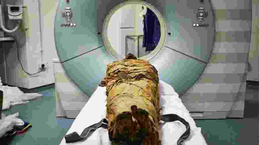 Cientistias britânicos descobrem voz de múmia - Reprodução/Leeds Teaching Hospitals/Leeds Museums and Galleries.
