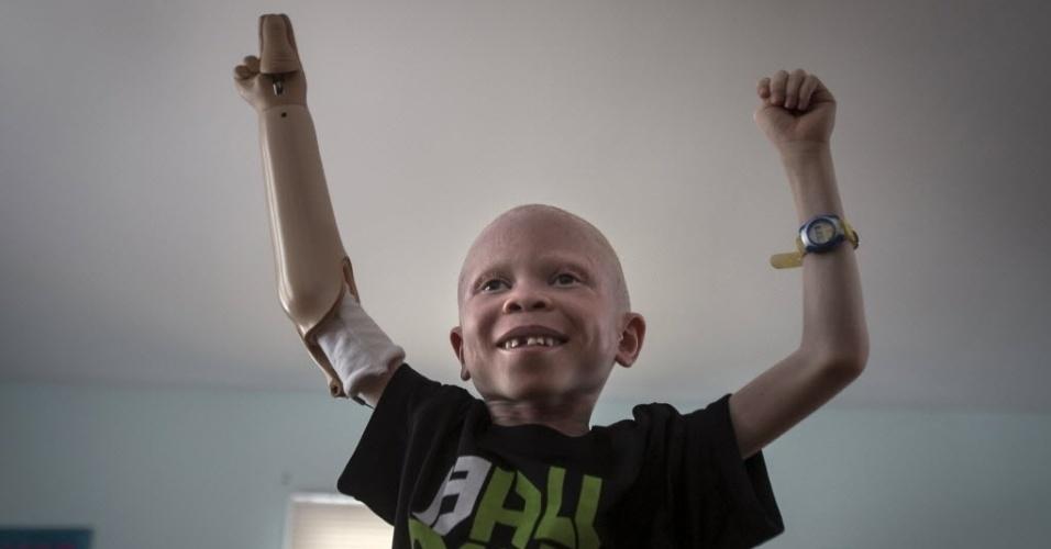 30.set.2015 - Baraka Cosmas, menino albino de 5 anos da Tanzânia, dança junto com um vídeo que é reproduzido em um computador em sua nova casa em Nova York, nos Estados Unidos. O albinismo é uma doença congênita que afeta cerca de uma em 20 mil pessoas no mundo, deixando-a sem pigmentação na pele, cabelo e olhos. Na África, existem superstições de que os membros de albinos são bons amuletos para feitiçarias, então se tornou comum amputar quem nasce com essa condição. A imagem é do dia 21 de setembro e foi divulgada nesta quarta-feira (30)
