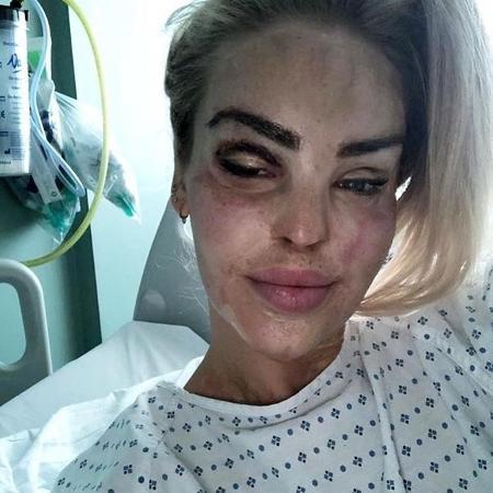 Katie revelou ter passado por mais de 350 procedimentos cirúrgicos para recuperação das queimaduras - Instagram/Katie Piper