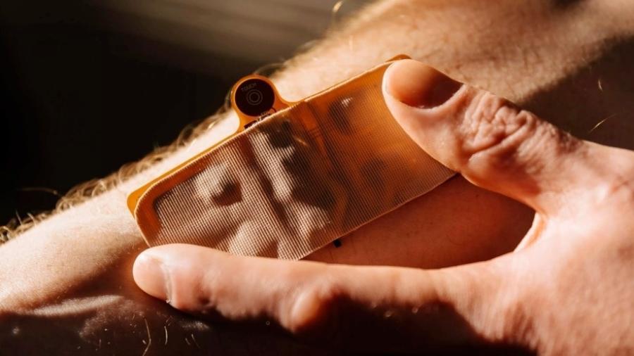 """Detalhe do """"Delaid"""", gadget que promete combater a ejaculação precoce - Divulgação/ Morari Medical"""