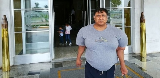 Alejandro Ramos, o 'Willy', convive com seu corpo inchado há quatro anos