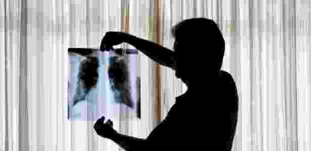 Muitos ex-funcionários de empresas de amianto desenvolveram doenças pulmonares no país - Fred Chalub/Folhapress - Fred Chalub/Folhapress