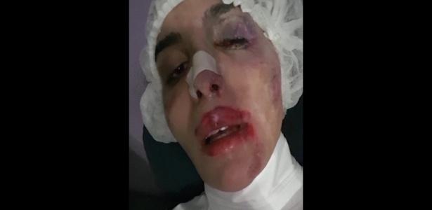 A modelo transexual Viviany Beleboni, 27, denunciou ter sido espancada por cinco homens no final da tarde desta segunda-feira (11) em uma rua do centro de São Paulo