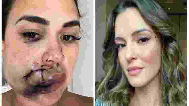 Milka, três dias depois da agressão: 40 pontos no rosto; à direita, a agressora, Fernanda Bonito - Reprodução/Instagram - Reprodução/Instagram