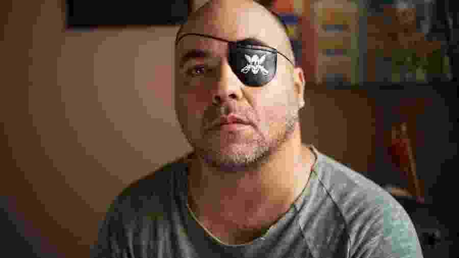 Fotógrafo Alex da Silveira, ferido por uma bala de borracha durante protesto em 2000 - Sergio Silva