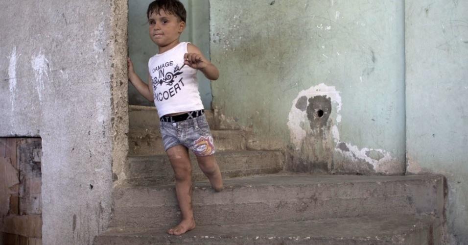 29.jul.2015 - Sharif Al-Namla, 4, desce as escadas de sua casa em em Rafah, no sul da faixa de Gaza. Ele teve um dos membros amputados durante a guerra de 50 dias entre Israel e militantes do Hamas no verão de 2014 (no hemisfério Norte), durante um ataque israelense que ficou conhecido como