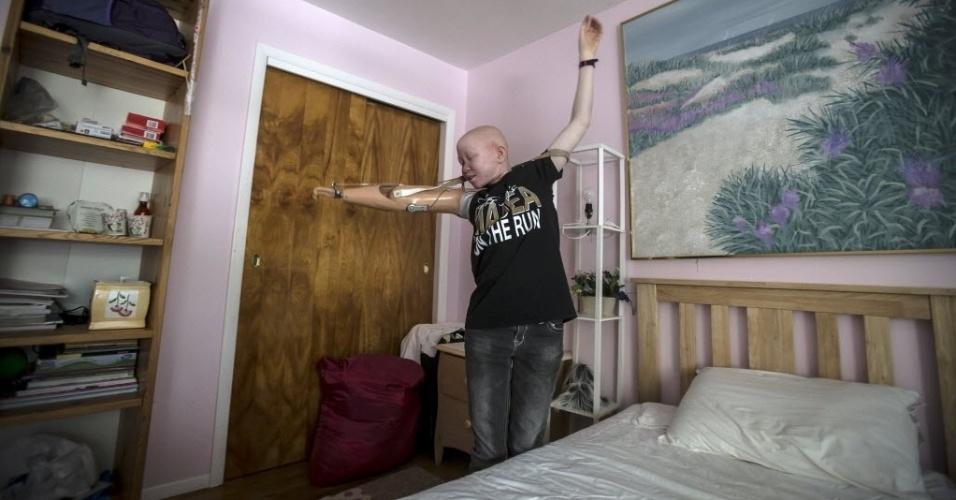 30.set.2015 - A menina Pendo Sengerema, 15 anos, dança em seu quarto no bairro de Staten Island, em Nova York, nos Estados Unidos. O albinismo é uma doença congênita que afeta cerca de uma em 20 mil pessoas no mundo, a deixando sem pigmentação na pele, cabelo e olhos. Na África subsaariano o albinismo é mais comum e afeta cerca de uma pessoa em 1.4mil na Tanzânia. A imagem é do dia 21 de setembro e foi divulgada nesta quarta-feira (30)