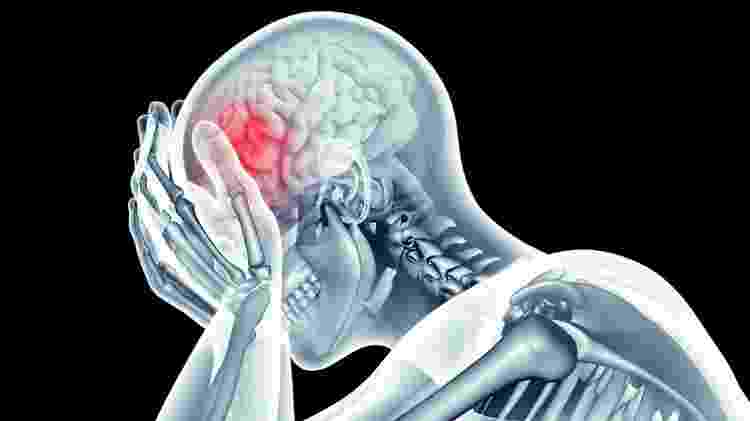 Alguns tipos de dores de cabeça são regulares, acometendo os pacientes no mesmo período do ano - Getty Images