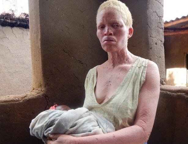 O albinismo é um distúrbio congênito caracterizado pela ausência de pigmento na pele, cabelos e olhos devido a uma deficiência na produção de melanina pelo organismo