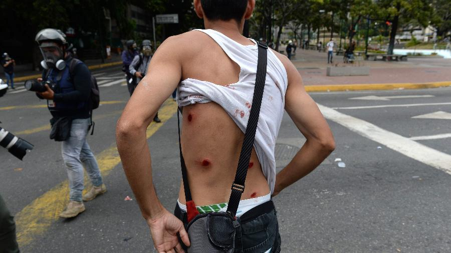 23.jan.2019 - Manifestante fica ferido mostra marcas de balas de borracha disparadas pelas tropas de choque durante protesto contra o governo de Nicolás Maduro, em Caracas, na Venezuela - Federico Parra/AFP