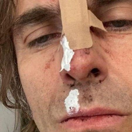 Liam Gallagher sofreu acidente após cair de helicóptero - Foto: Reprodução / Instagram