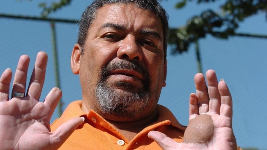 Odesson Alves Ferreira mostra as lesões nas duas mãos em decorrência de contato com o material radioativo - Arquivo pessoal