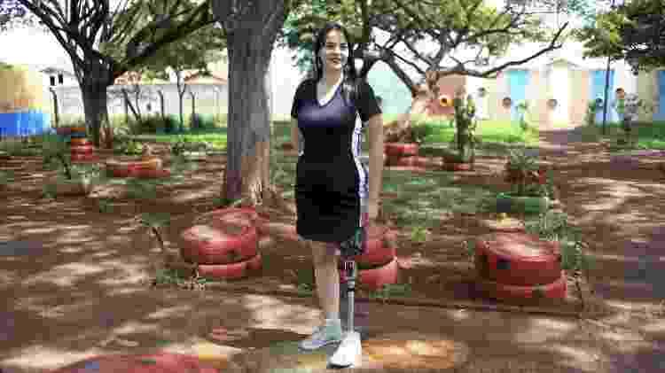Alessandra Scaratto Budny, que perdeu a perna em um acidente de moto, ainda sofre com a dor fantasma - Fernando Cremonez/UOL - Fernando Cremonez/UOL