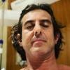 Adriano Melo mostrou foto se recuperando de cirurgia