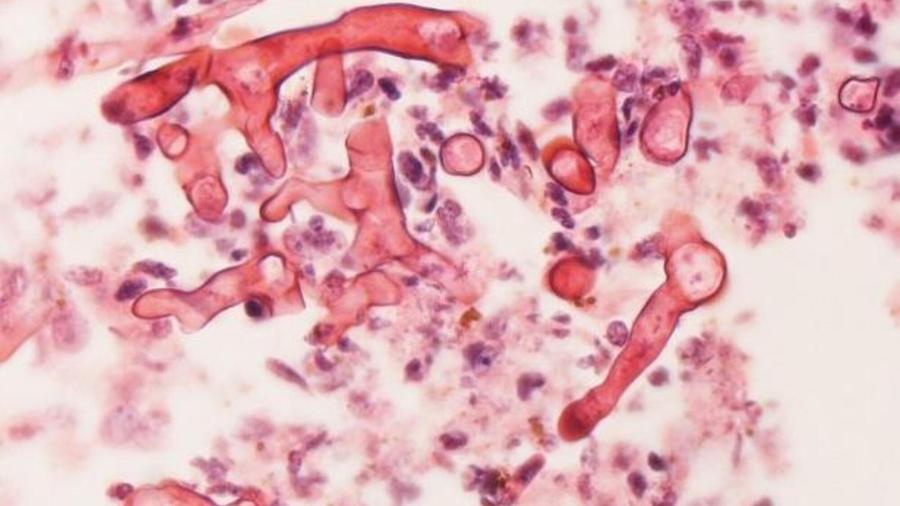 Caso suspeito de mucormicose, o fungo negro, é investigado em paciente com covid-19 no Mato Grosso do Sul - Reprodução